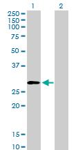 Western blot - PSMD9 antibody (ab103408)