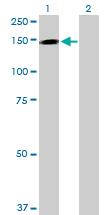 Western blot - TMEM1 antibody (ab103411)
