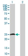 Western blot - MLC1SA antibody (ab103412)