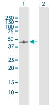 Western blot - GCDH antibody (ab103415)