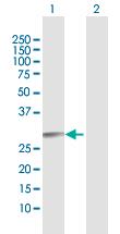 Western blot - RAB27B antibody (ab103418)