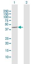 Western blot - MCM9 antibody (ab103420)