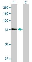 Western blot - FEM1A antibody (ab103421)