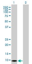 Western blot - S100 alpha 2 antibody (ab103423)