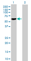Western blot - 68kDa Neurofilament antibody (ab103424)