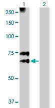 Western blot - MGAT3 antibody (ab103427)