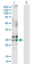Western blot - Eosinophil derived neurotoxin antibody (ab103428)