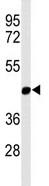 Western blot - MMAA  antibody (ab103459)