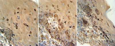 Immunohistochemistry (Formalin/PFA-fixed paraffin-embedded sections) - TRP2 antibody (ab103463)