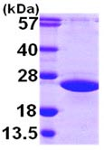 SDS-PAGE - ARL2 protein (ab103471)