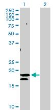 Western blot - CD75 antibody (ab103472)