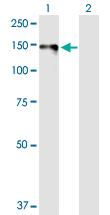 Western blot - Anti-Desmoglein 1 antibody (ab103473)
