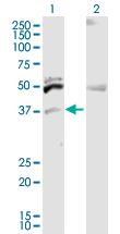 Western blot - ITM2B antibody (ab103474)