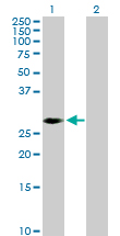 Western blot - PRKAB2 antibody (ab103494)