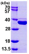 SDS-PAGE - METTL1 protein (ab103495)