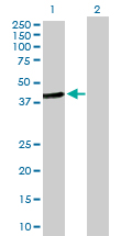 Western blot - HOMER2 antibody (ab103496)