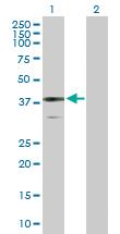 Western blot - BDH1 antibody (ab103500)