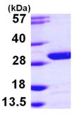 SDS-PAGE - UCHL3 protein (ab103502)