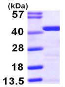SDS-PAGE - Tropomyosin 2 protein (ab103503)