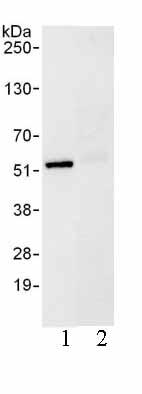 Immunoprecipitation - UBXN6 antibody (ab103525)