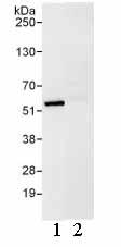Immunoprecipitation - UBXN6 antibody (ab103526)
