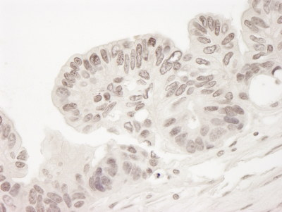 Immunohistochemistry (Formalin/PFA-fixed paraffin-embedded sections) - Torc2 antibody (ab103528)