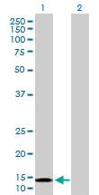 Western blot - NDUFB6 antibody (ab103531)