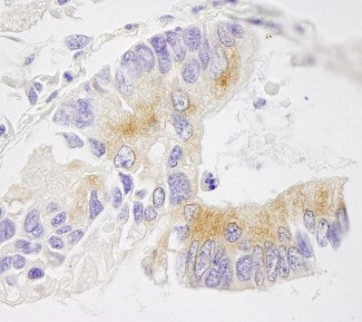 Immunohistochemistry (Formalin/PFA-fixed paraffin-embedded sections) - EML4 antibody (ab103532)