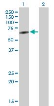 Western blot - PLEKHO2 antibody (ab103539)