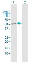 Western blot - CRLF3 antibody (ab103540)