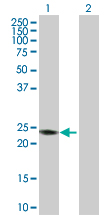Western blot - RAB7B antibody (ab103544)