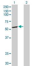 Western blot - CYP2C8 antibody (ab103547)