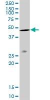 Western blot - beta Actin antibody (ab103548)