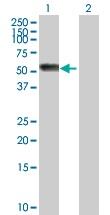 Western blot - Angiotensinogen antibody (ab103549)