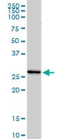 Western blot - C1QG antibody (ab103550)