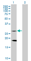 Western blot - Clathrin light chain antibody (ab103553)