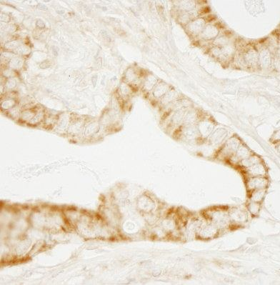 Immunohistochemistry (Formalin/PFA-fixed paraffin-embedded sections) - GEF H1 antibody (ab103558)