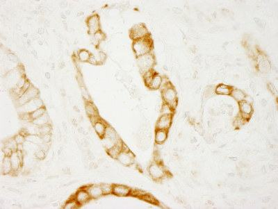 Immunohistochemistry (Formalin/PFA-fixed paraffin-embedded sections) - Protein Kinase D2 antibody (ab103559)
