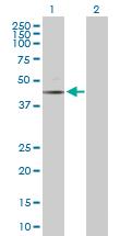 Western blot - Anti-Caspase-6 antibody (ab103570)