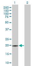 Western blot - Anti-CD3D antibody (ab103573)