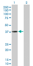 Western blot - Cathepsin L antibody (ab103574)