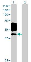 Western blot - EGFR antibody (ab103575)