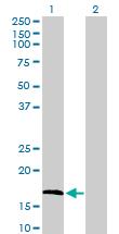 Western blot - FGF1 antibody (ab103577)
