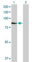 Western blot - TIAM2 antibody (ab103578)