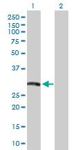 Western blot - HLA DRB5 antibody (ab103581)