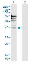 Western blot - PSMD6 antibody (ab103583)