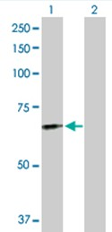 Western blot - FGL2 antibody (ab103584)