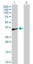 Western blot - TOMM34 antibody (ab103585)