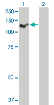 Western blot - ATP2C1 antibody (ab103587)