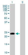 Western blot - RAB31 antibody (ab103588)